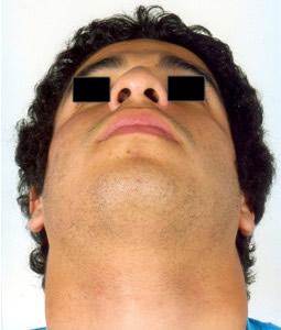 Aumento de altura de la base nasal