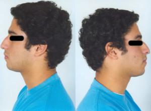Reducción de la giba nasal rotacion del angulo nasal