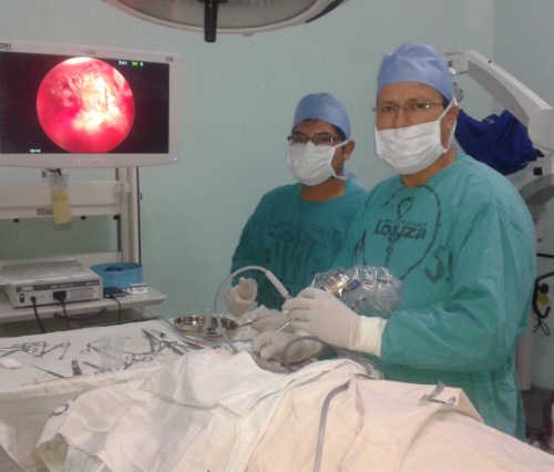 timpanoplastia-endoscopica2